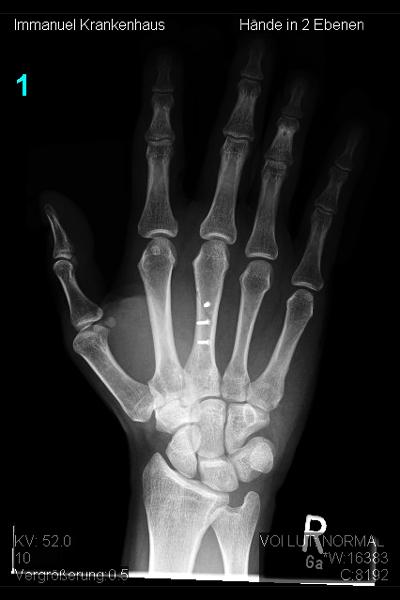 Knochenbrüche An Hand Und Fingern Obere Extremität Hand Und