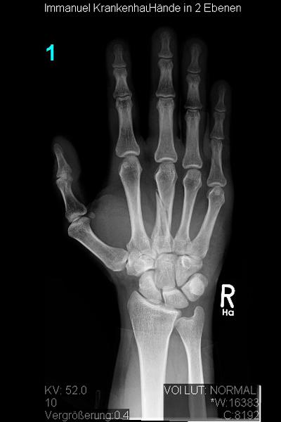 Knochenbrüche an Hand und Fingern | Obere Extremität, Hand- und ...